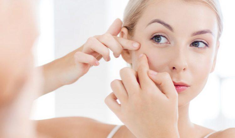 Espremer espinha pode marcar e manchar o rosto?⠀